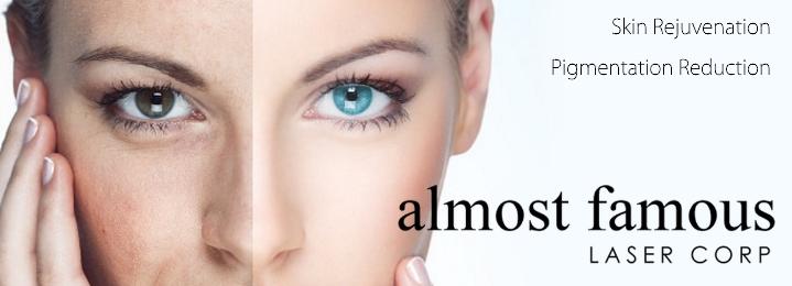 59 Best Facial Rejuvenation images | Facial rejuvenation ...