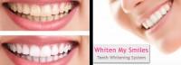 whiten-my-smiles-nanaimo